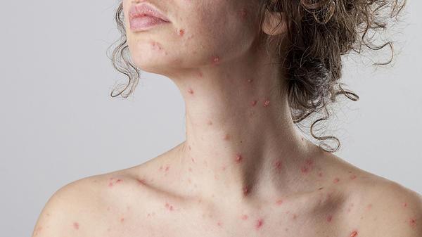 varicela durante el embarazo